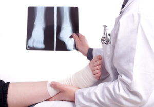 Doctor examines patients sprained foot while holding x ray