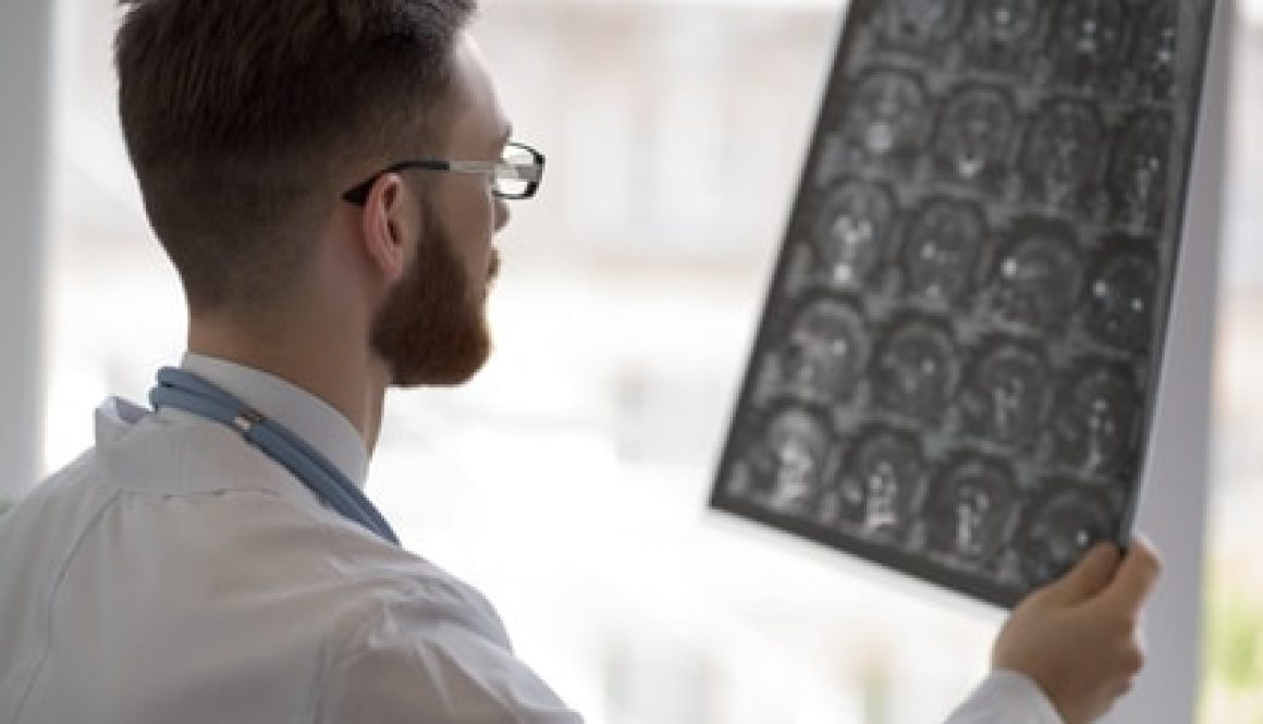 Georgia's workers compensation law covers head and brain injuries, but there are special rules that apply which could affect your benefits
