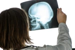 Doctor holding xray of human head and brain