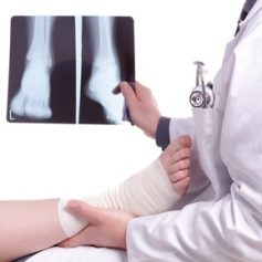 Georgia workers compensation covers most medical treatment you need for your injury, but there are special rules that you must follow to make sure your treated is covered